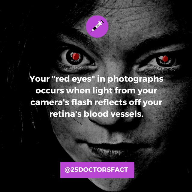 what causes red eyes in photographs? Retinal blood vessels