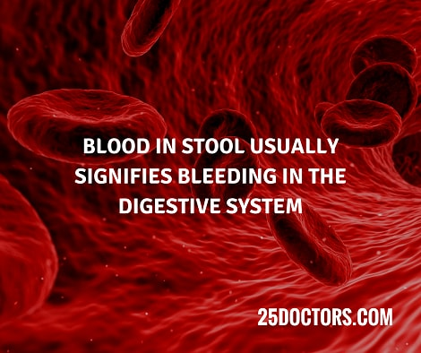 Blood in stool usually signifies bleeding in the digestive system