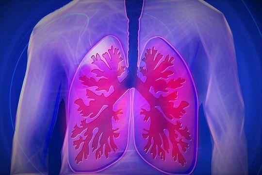 Pulmonary hypertension chest pain