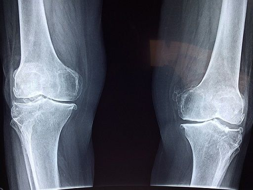 Knee X-ray for dislocated knee