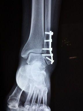 ankle Xray.jpg