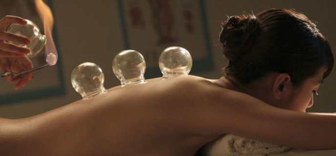 acupuncture cupping ACNJ