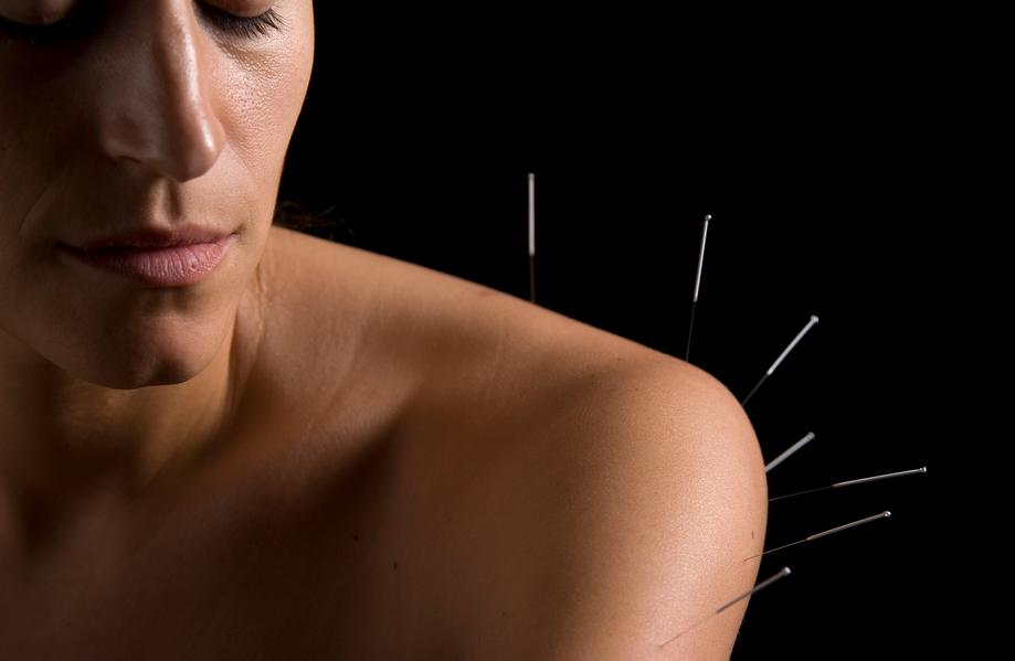 shoulder acupuncture needles
