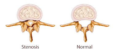 spinal stenosis.jpg