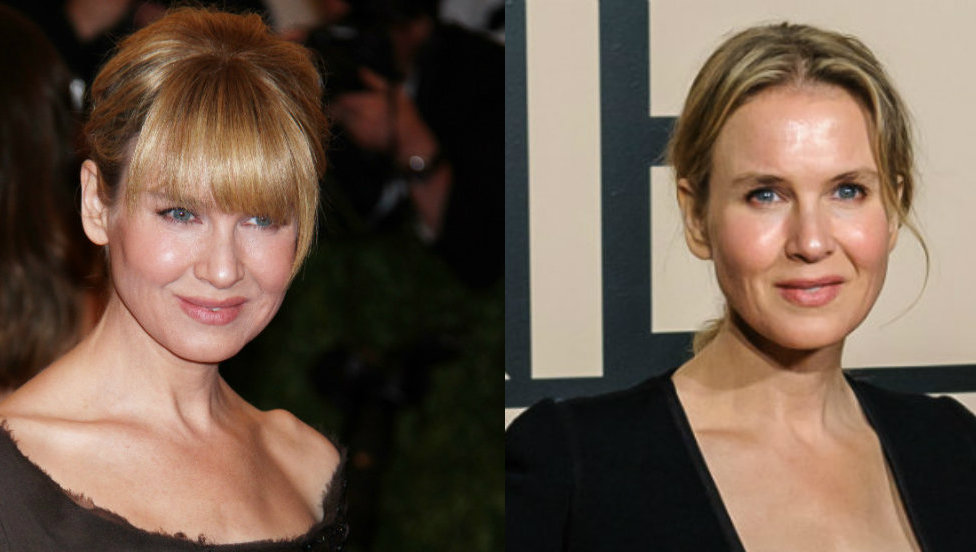Renee Zellweger before and after Hollywood's insane beauty standards got to her.