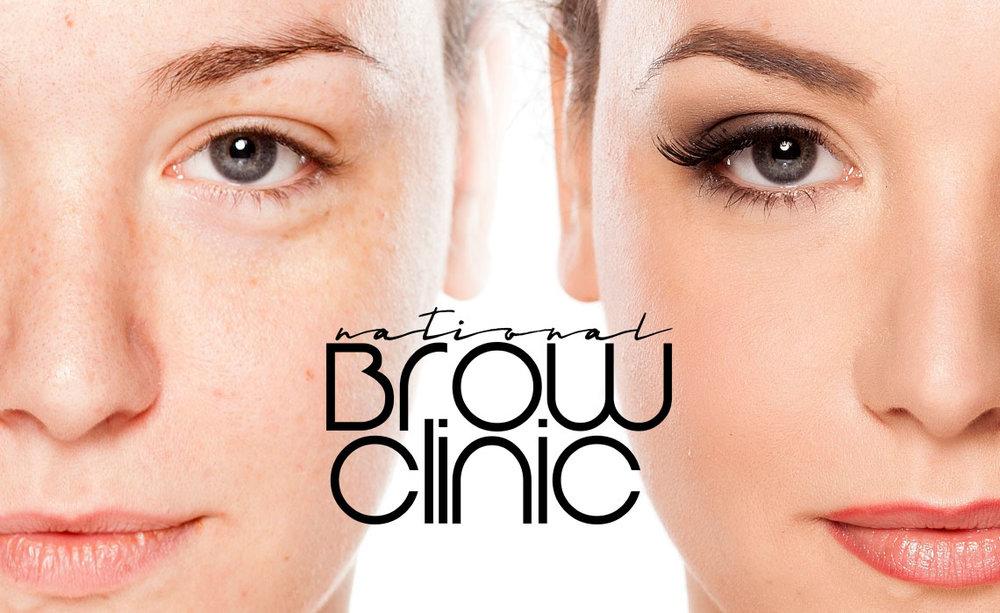 Testimonials National Brow Clinic