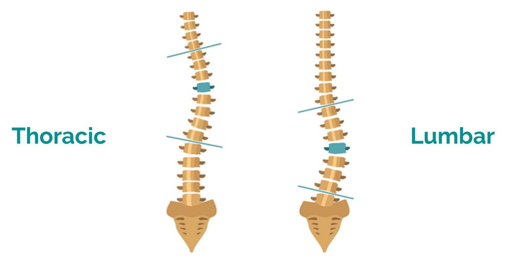We also aim to incorporate modular spinal configurations through array pf inserts