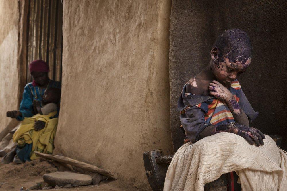 """""""The Forgotten Mountains of Sudán""""  Adriane Ohanesian - Estados Unidos  Segundo lugar en categoría individual  Descripción: Adam Abdel es un niño de 7 años que sufrió quemaduras de tercer grado cuando una bomba fue lanzada a lado de su casa en zonas rebelder de Darfur Sudán. En el 2003 desde el gobierno del presidente Omar al- Bashir se rompio mediante una insurgencia, cientos de personas fueron asesinadas y millones se quedaron sin hogar"""