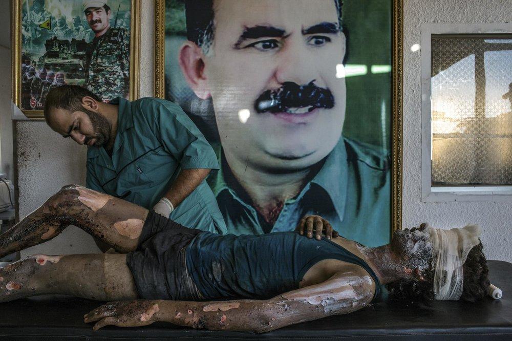 """""""IS Fighter Treated at Kurdish Hospital""""  Mauricio Lima - Brasil  Primer lugar en categoría individual  Descripción: En el norte de Siria, un doctor le unta pomada en todo el cuerpo a Jacob, un joven de 16 años que estáinvolucrado en las actividades del estado islámico, detrás de este escenario se encuentra el poster de Abdullah Öcalan, el líder de los trabajadores de Kurdistán, lo interesante de todo esto es que el hospital en donde fue atendido este joven es controlado por la YPG, una fuerza opositora del estado islámico."""