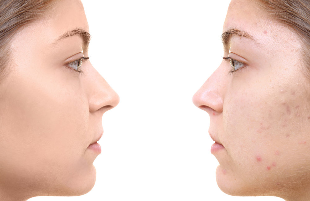 acne-cure.jpg