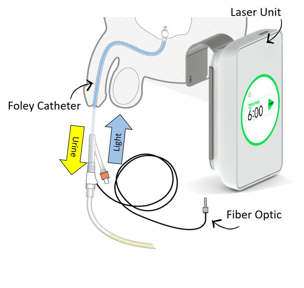 Foley and Laser unit.jpg