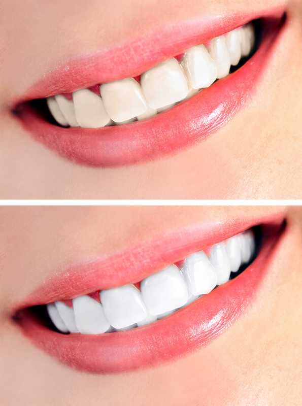 A before and after comparison after teeth whitening.