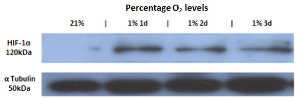 Figure 4 .   Western blotting analysis showing stabilisation and ac- cumulation of HIF-1     protein in HeLa cells incubated in hypoxic conditions (1% O  2  ) for 1, 2 and 3 days.      -Tubulin was used as a loading control in normoxic conditions (21% O  2  ); n=1.