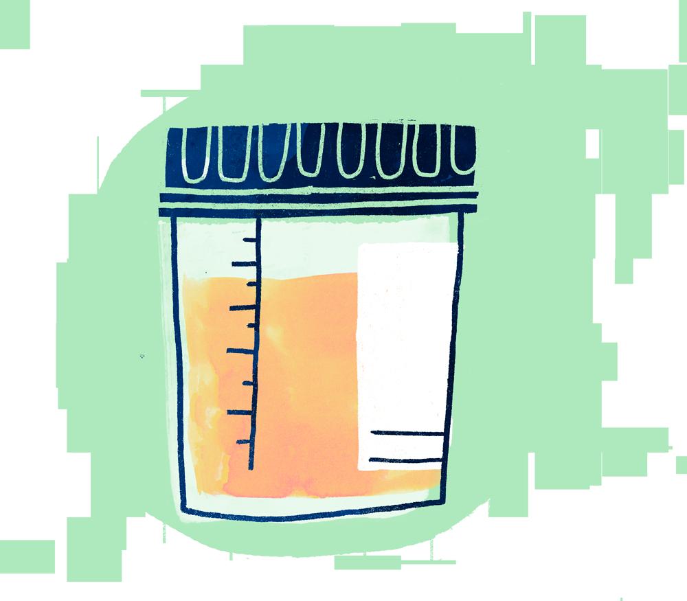 specimen-bottle.png