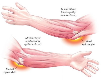 elbow-pain-pic.jpg