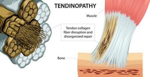 OTTEastbourne_Tendonitis_tendinosis_Fibres.jpg