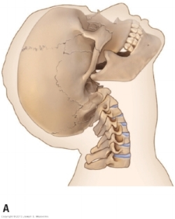 Cervical Extension