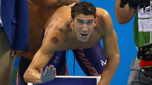 160809172558-michael-phelps-cupping-exlarge-169.jpg