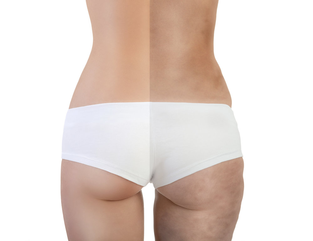 Lower Body Lift Walnut Creek Ca Body Lift Surgeon Bay Area Dr
