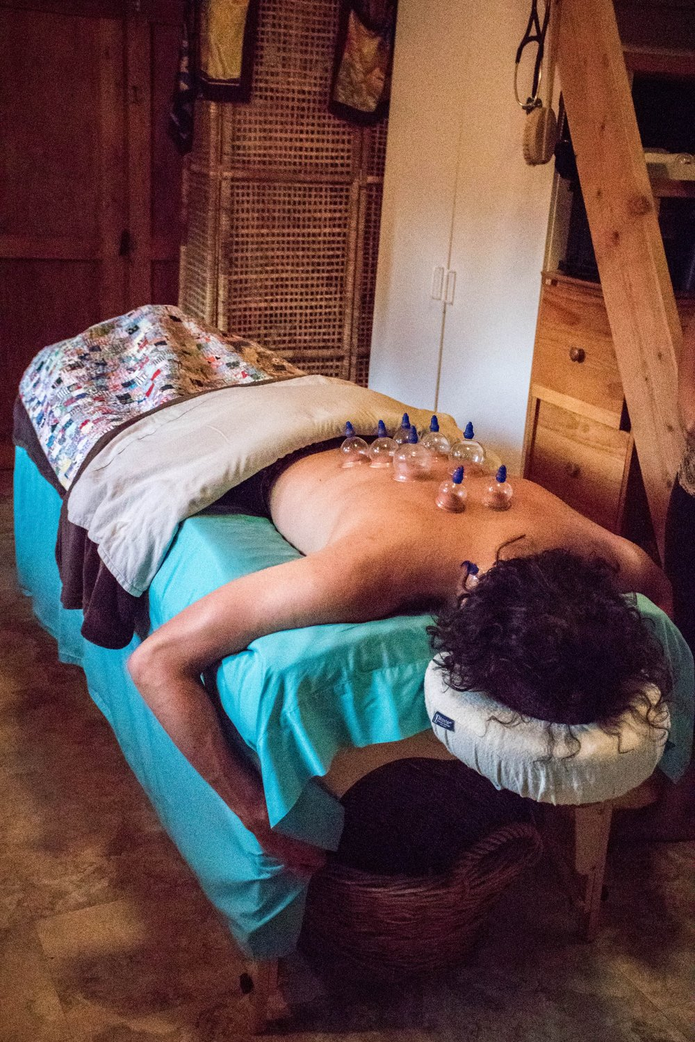 Cupping - Cupping therapy is an ancient form of alternative medicine in which a therapist puts special cups on your skin for a few minutes to create suction. People get it for many purposes, including to help with pain, inflammation, blood flow, relaxation and well-being, and as a type of deep-tissue massage (info from WebMD.)Patient receiving cupping for acute back pain in Dr. Alicia's Home Office. Photo Courtesy of Happy Beautiful Wealthy.