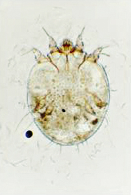 Microscopic image of  Sarcoptes scabiei