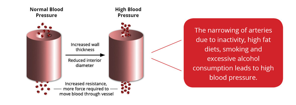 Blood pressure exercise effect.jpg