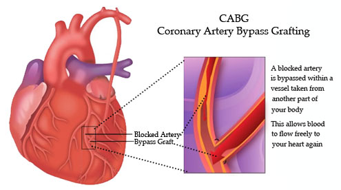 Clinical Exercise Cabg