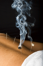 Moxa acupuncture needles Melbourne Abbotsford