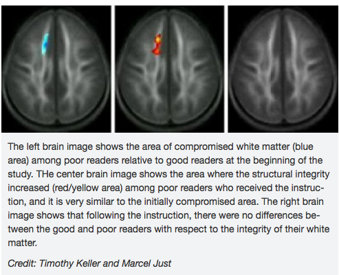 Neuroscientists at MIT and Carnegie-Mellon University  have released dramatic first time evidence of actual brain rewiring in the brains of poor readers. The study, involving one-year follow-up brain scans, showed dramatic visual evidence that  Failure Free Reading's 100 hour reading intervention actually rebuilt white cortical matter in the under performing brain areas of poor readers, bringing them back to the normal range .