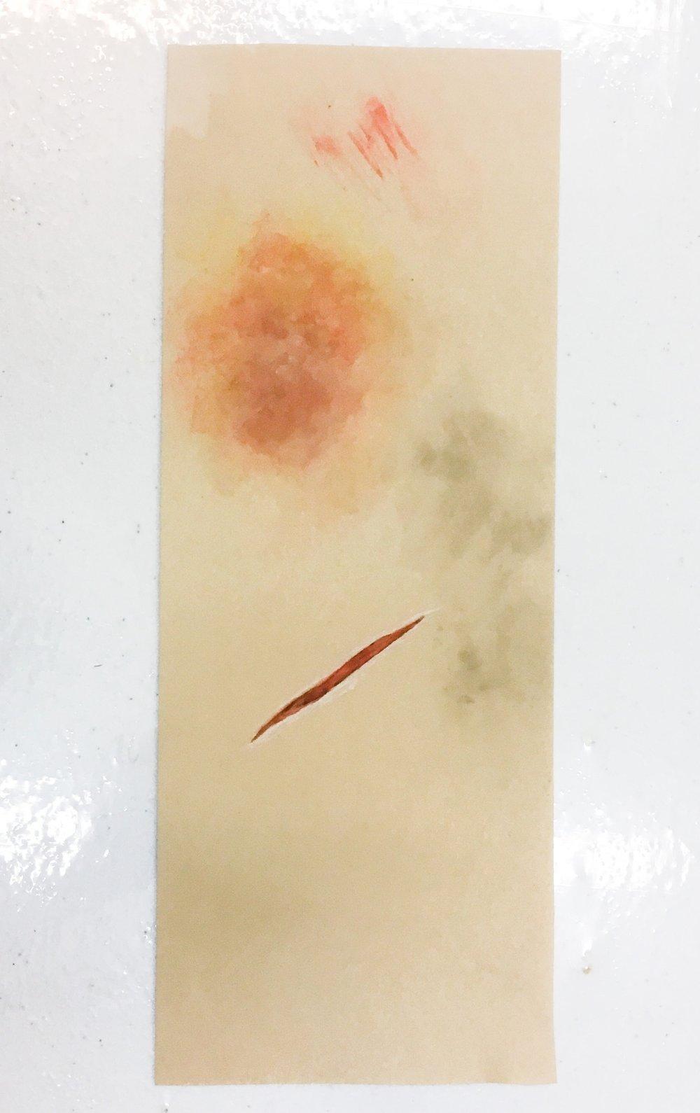 Use of moulage on ReaLifeSim skin. Courtesy of Stephanie at Moulage Sciences & Training, LLC