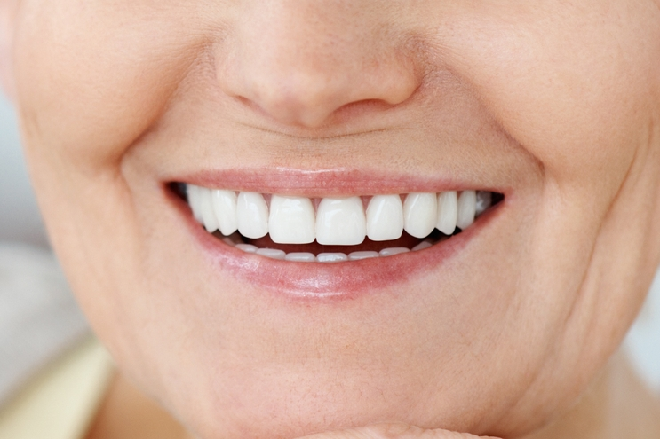 Implant-Dentaire-Nobel-Biocare-1.jpg