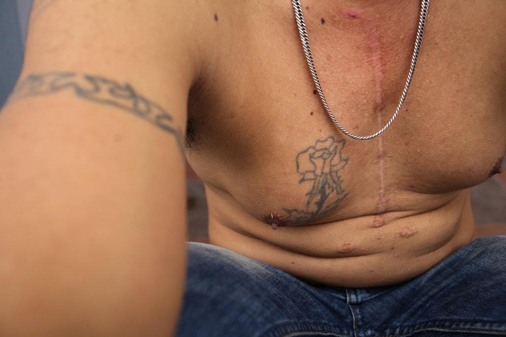 The scar from Tran Mau Duc's surgery. © Tran Quoc Ahn