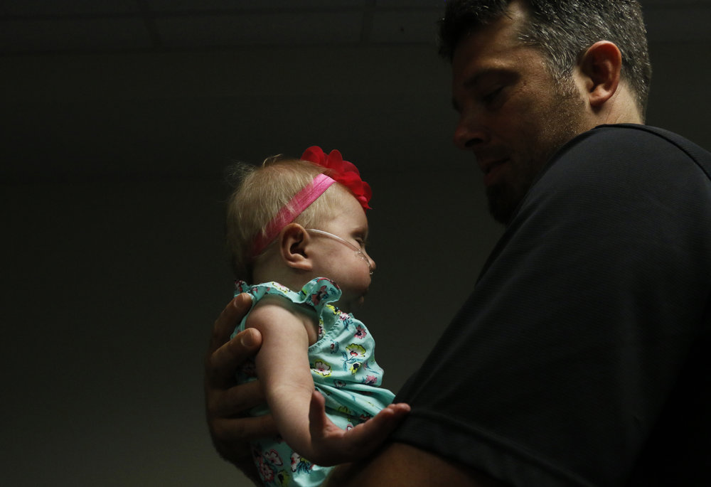 "10-month-old Teegan Lexcen is held by her father Chad prior to a press conference with the parents of the ""inoperable"" baby at The Heart Program at Nicklaus Children's Hospital on June 14, 2016. Teegan has been officially been released from the ICU and will be heading back home to Minnesota within the week with the rest of her family."