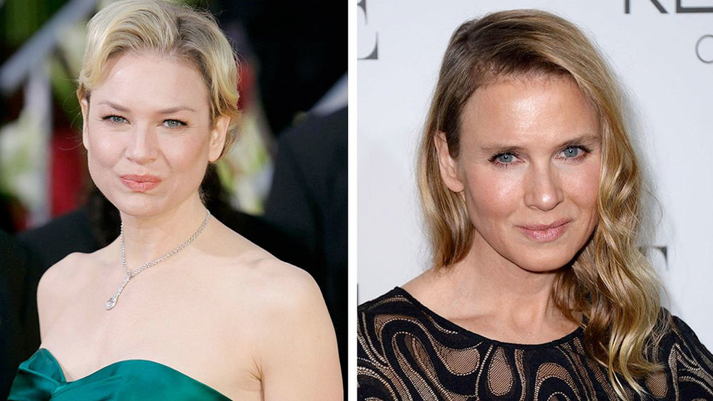 Renee-Zellweger-before-and-after-2.jpg