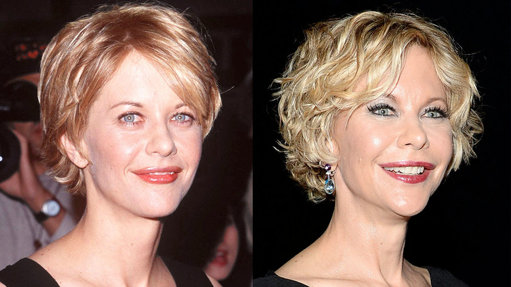 Meg-Ryan-Plastic-Surgery-Before-And-After-Photos-Lip-Implants-Botox-3.jpg