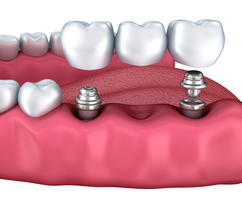 Watergate Dental offers implant-supported bridges
