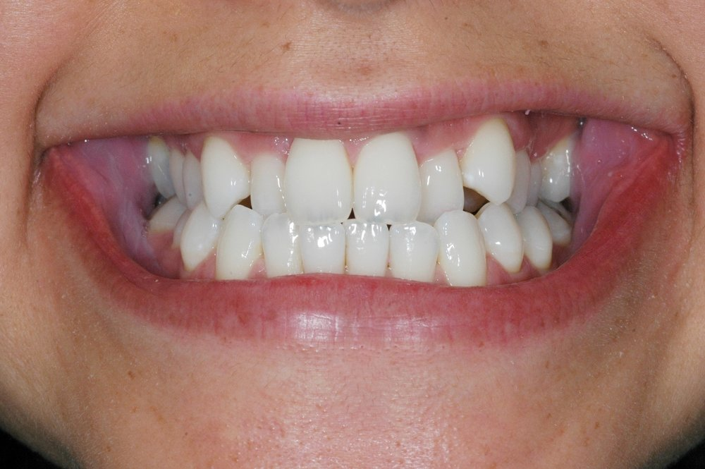 Invisalign at Watergate Dental - Before