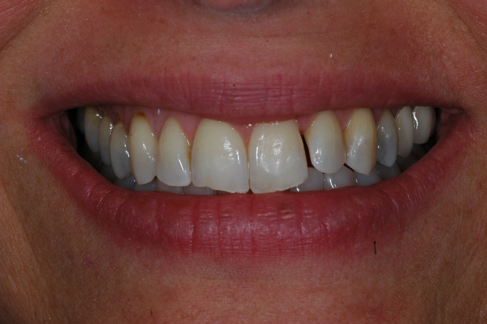 Cosmetic Bonding - Before