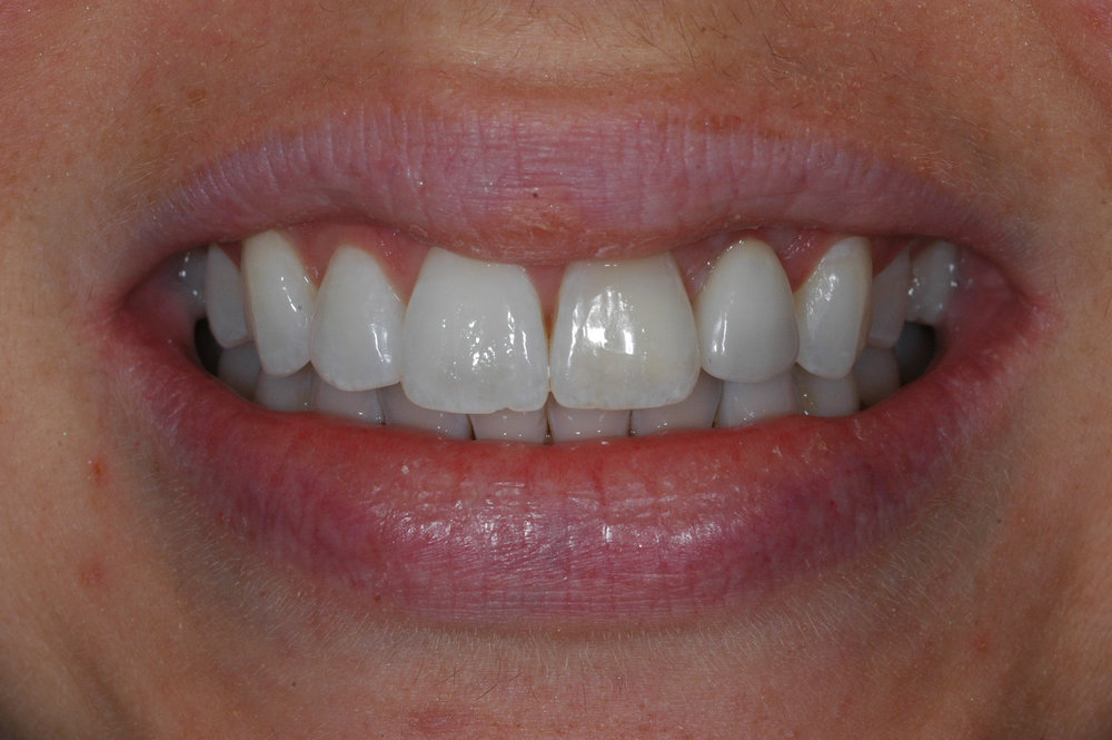 Front tooth implant - after final crown