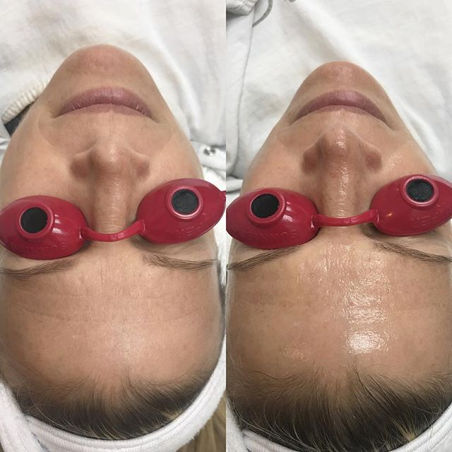my favorite combo for dull/ rough looking skin: Dermaplaning and a yummy ZO peel for smoother, glowing, youthful looking skin 💆🏼♀️ ⏰no downtime - 30 min treatment ▶️improves skin tone and texture ▶️no peeling and no redness ▶️great for wrinkles, lines, acne, age spots, rough texture ☎️ 301-881-7770 to schedule with yours truly! . . Don't forget the rest of you!!! I always put a little extra spf and Work my way down to the neck, chest, and whatever is left over to the back of my hands! The same goes for anti-aging products at night 💁🏼♀️ . . #zocrew #skin #skincare #healthyskin #beauty #losangeles #beverlyhills #potomac #beautyblogger #bethesda #rockville #md #dc #zocrew💙 #zogirl #wednesday #follow #cosmetic #plasticsurgery #bestfacial #skintip