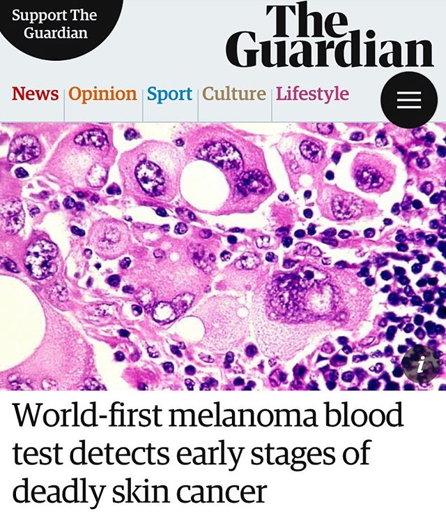 "Promising news... ""Australian scientists have developed the world's first blood test to detect melanoma in its early stages.  Early trials of the test involving 209 people showed it was capable of picking up early stage melanoma in 81.5% of cases.  The next step for the scientists from Edith Cowan University is to carry out clinical trials to validate their findings, with hopes the test could be commercially available in about three to five years.  Professor Mel Ziman, head of the Melanoma Research Group at the university, said the test has the potential to save thousands of lives.  It can help deliver a more accurate diagnosis of early-stage melanoma, which can be tricky to detect with the human eye, particularly if small."" #melanoma  #skincancerawareness  #melanomaawareness  @guardian"