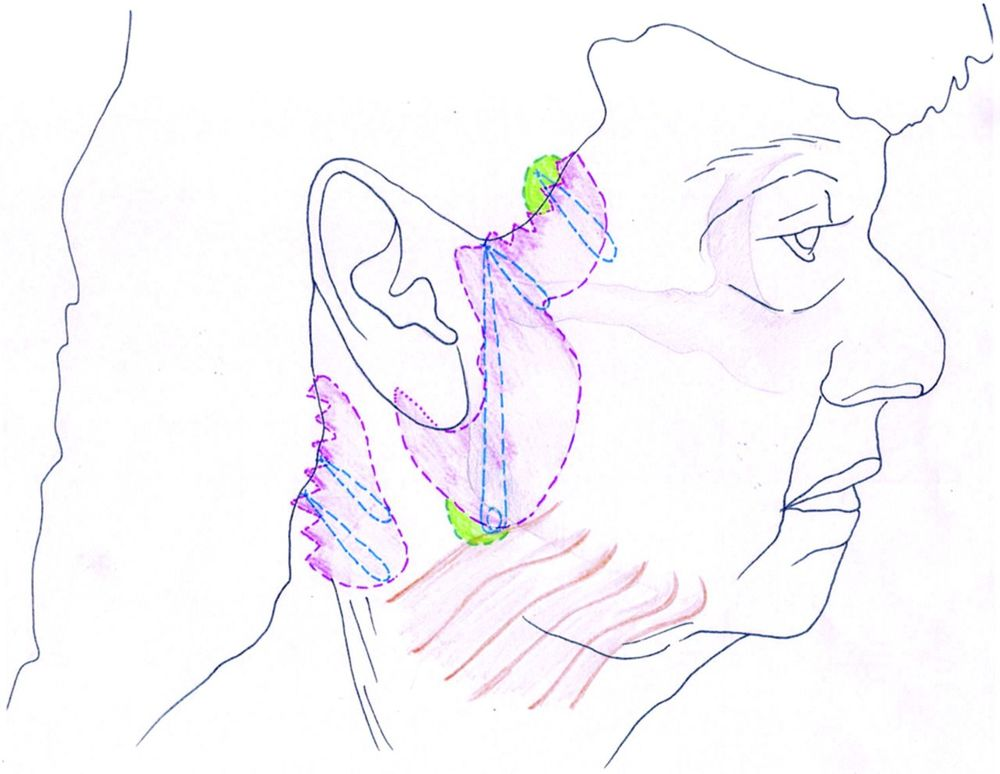 "Figure 2. - This illustration highlights the main areas addressed in the posterior cervicoplasty technique. ""U"" suture: MACS-like SMAS plication from temporal fascia above zygomatic arch, includes posterior edge of platysma. ""O"" suture: dermis and subcutaneous tissue, including SMAS to temporal fascia above the zygomatic arch. Third suture: dermis and subcutaneous tissues to temporal fascia above zygomatic arch. Posterior cervicoplasty sutures skin and subcutaneous approximation sutures using 3.0 PDS. Further 3-0 PDS skin approximation sutures from the deep dermal layer to the pre-auricular epichondrium (purple shaded area, skin excision; green shaded area, two small areas skin of undermining to facilitate suture placement)."
