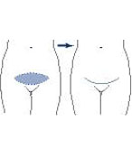 Mini abdomminoplasty