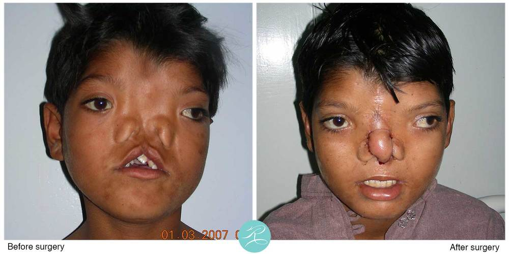 A difficult cleft lip and nose reconstruction case, after four operations