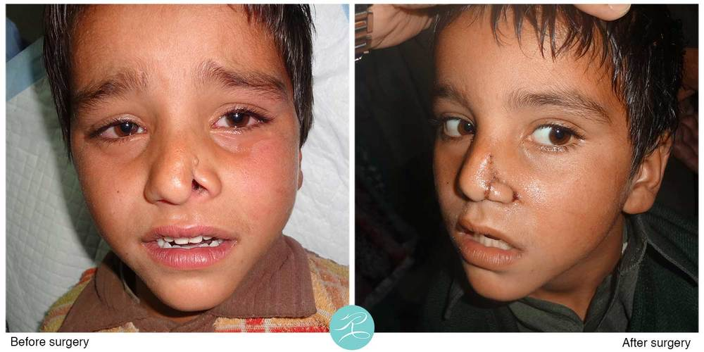 Cleft nose deformity, reconstructed with local re-positioning of the tissue,  three weeks after the operation.