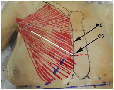 Figure 1. Markings before dissection of this 89-year-old female cadaver. The sternum and clavicle are marked in black, the pectoralis major is marked in red, and the gland boundaries and inframammary folds are in blue. The white line depicts the path of a biplane muscle split. CS, lateral junction of the middle and caudal one-third of the sternum. MS, midpoint of the sternum at its lateral border. The mean distance to the most medial nerve branch was consistently shorter from MS than from CS.