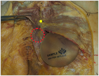 Figure 3. Placement of a round implant in a biplane muscle-splitting pocket in this 89-year-old female cadaver. The upper medial portion of the implant is submuscular. The yellow dot indicates the entry site of the most medial nerve branch into the pectoralis major. There is no separation of the inferior portion of the muscle (depicted by a red circle), and the muscle is not detached from its medial origin. Inferior sepa-ration would occur if the split was initiated more caudally on the pectoralis major.