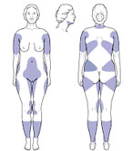 Areas of the body commonly treated