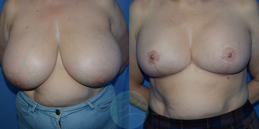 R-Breast-Reduction-1b.jpg