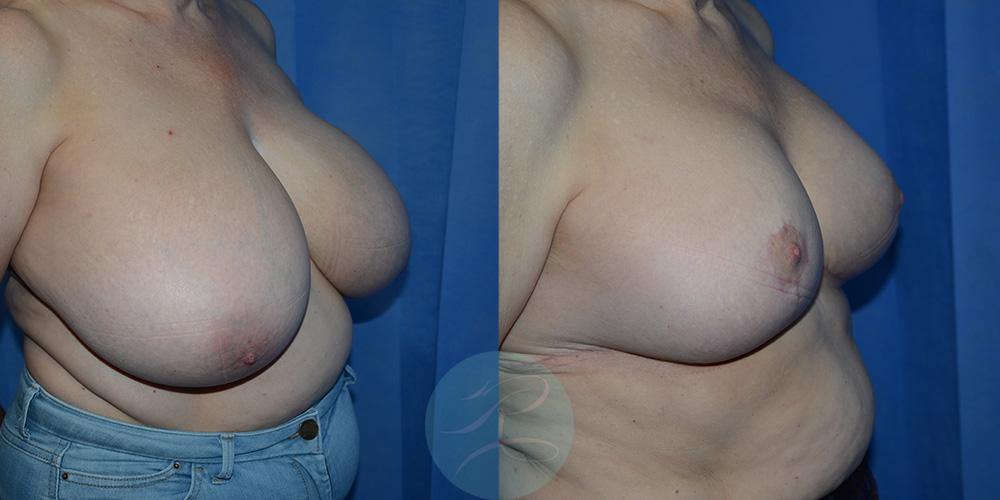 R-Breast-Reduction-1c.jpg